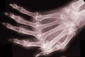 arthritus